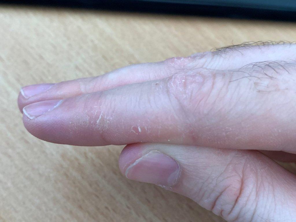 пальцы.jpg